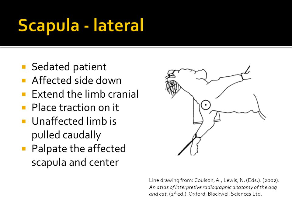 Scapula - lateral Sedated patient Affected side down