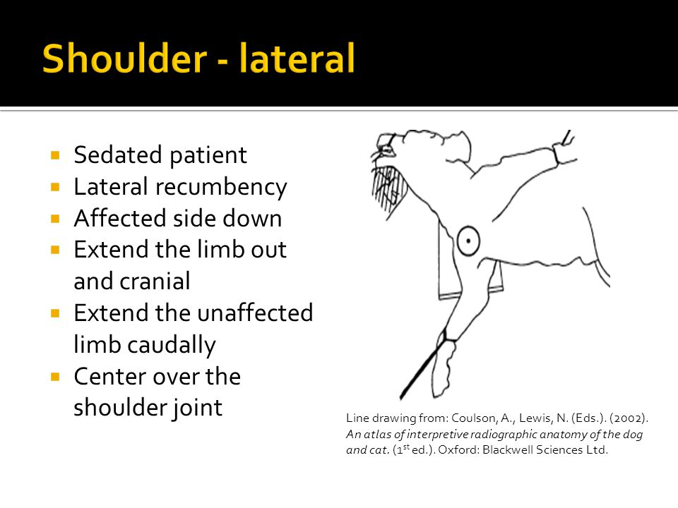 Shoulder - lateral Sedated patient Lateral recumbency