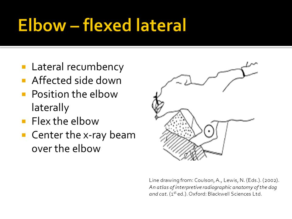 Elbow – flexed lateral Lateral recumbency Affected side down