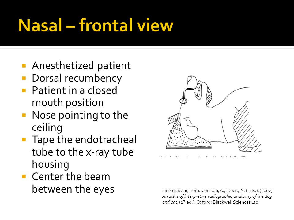 Nasal – frontal view Anesthetized patient Dorsal recumbency
