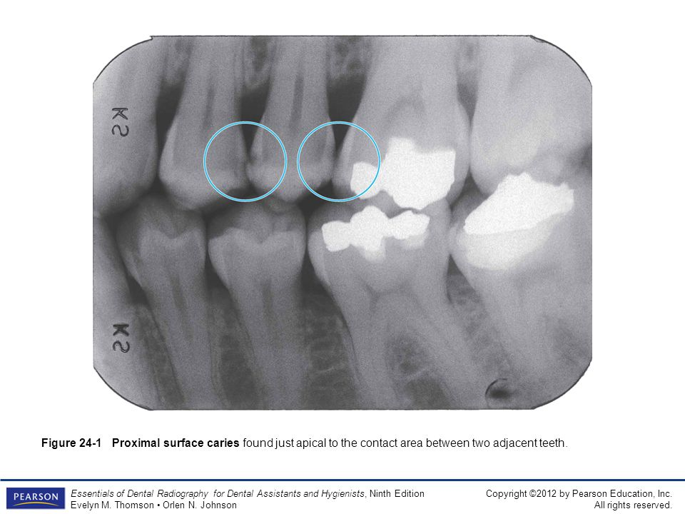Figure 24-1 Proximal surface caries found just apical to the contact area between two adjacent teeth.