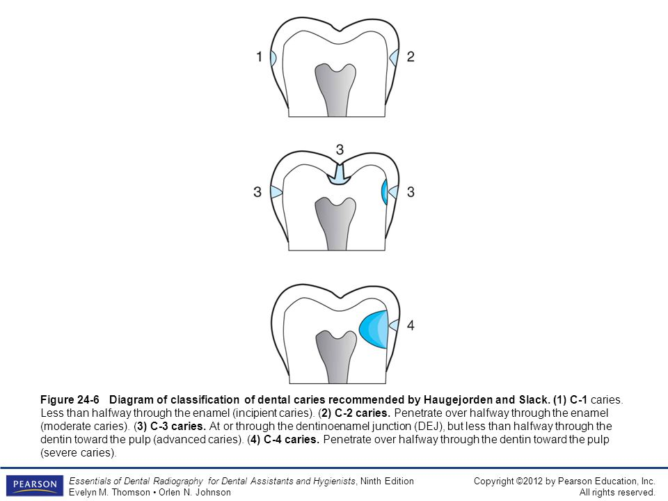 Figure 24-6 Diagram of classification of dental caries recommended by Haugejorden and Slack.
