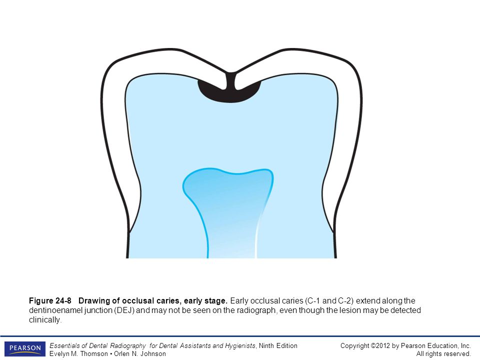 Figure 24-8 Drawing of occlusal caries, early stage