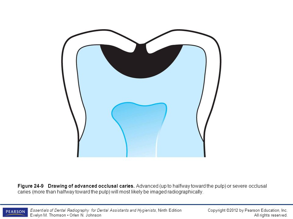 Figure 24-9 Drawing of advanced occlusal caries