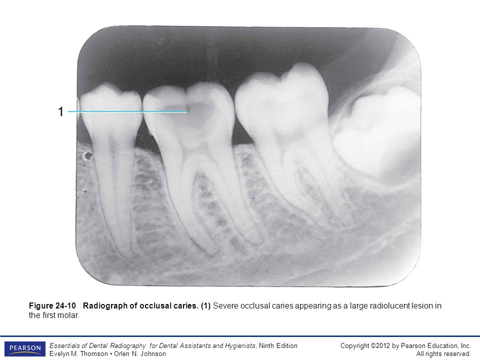 Figure 24-10 Radiograph of occlusal caries