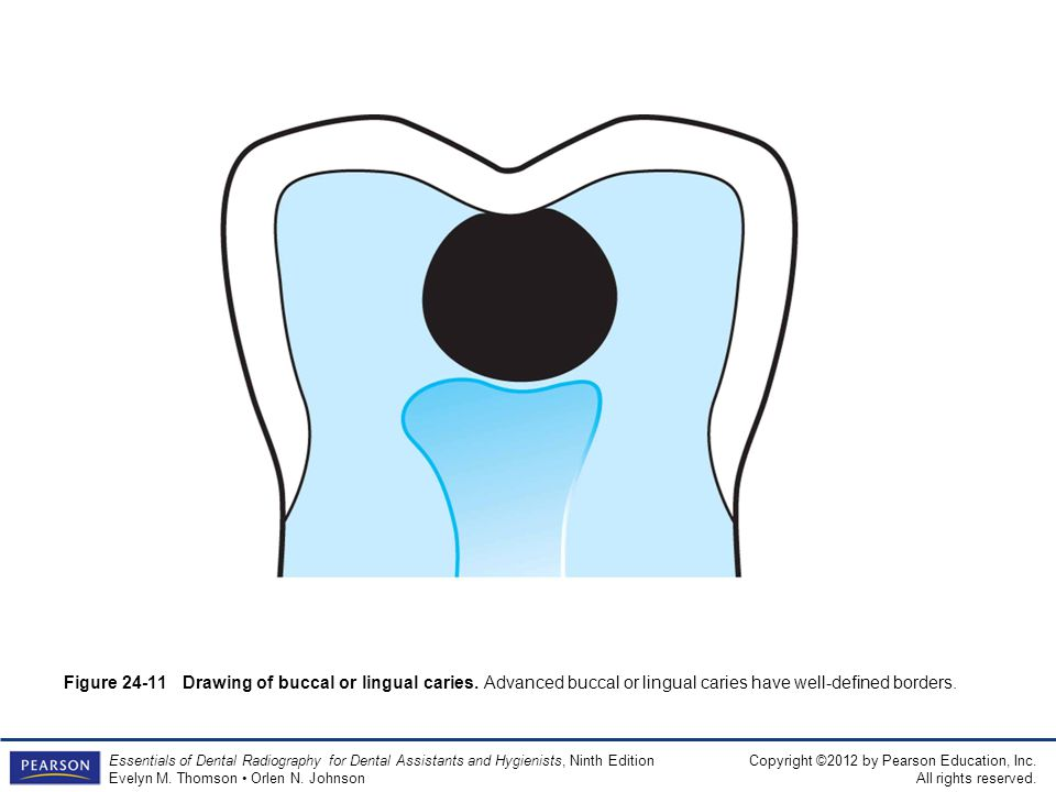 Figure 24-11 Drawing of buccal or lingual caries