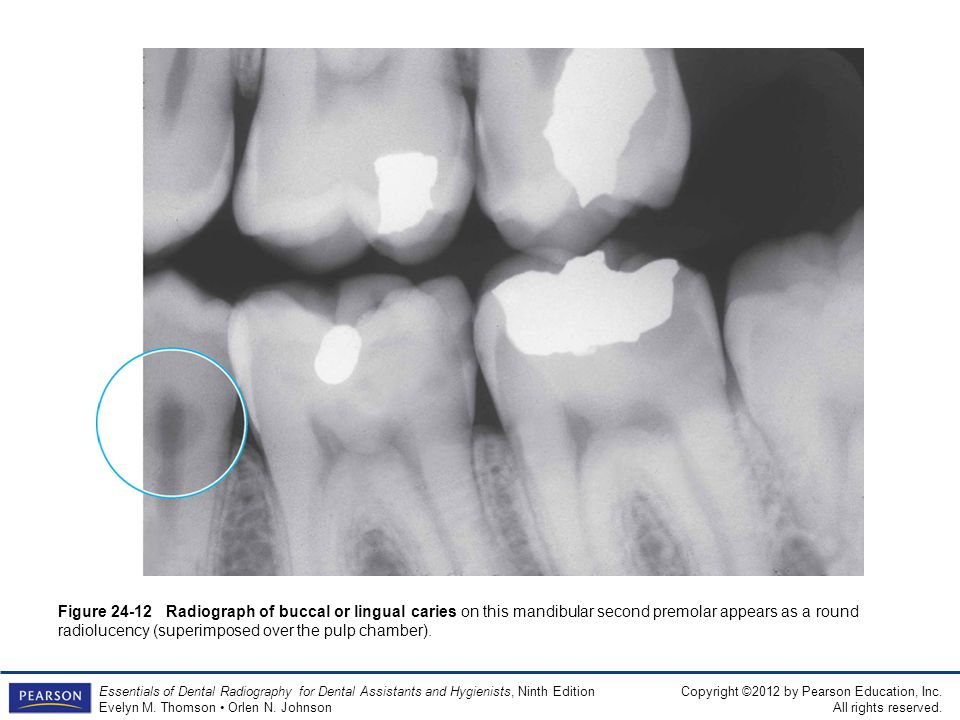 Figure 24-12 Radiograph of buccal or lingual caries on this mandibular second premolar appears as a round radiolucency (superimposed over the pulp chamber).