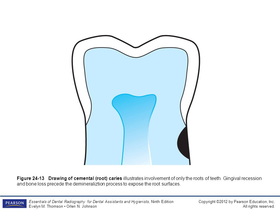 Figure 24-13 Drawing of cemental (root) caries illustrates involvement of only the roots of teeth.