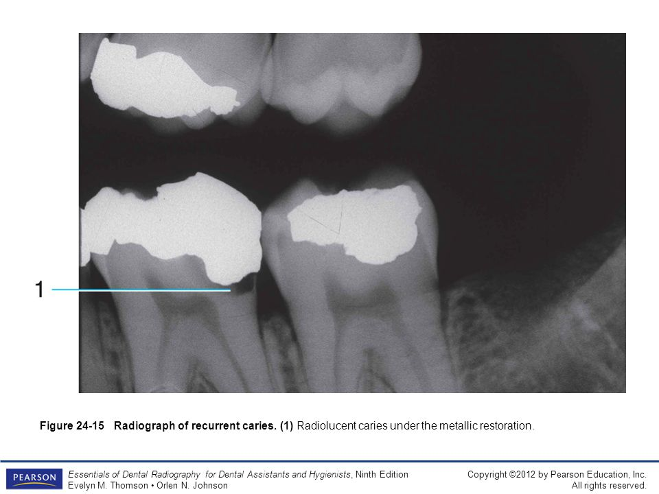 Figure 24-15 Radiograph of recurrent caries