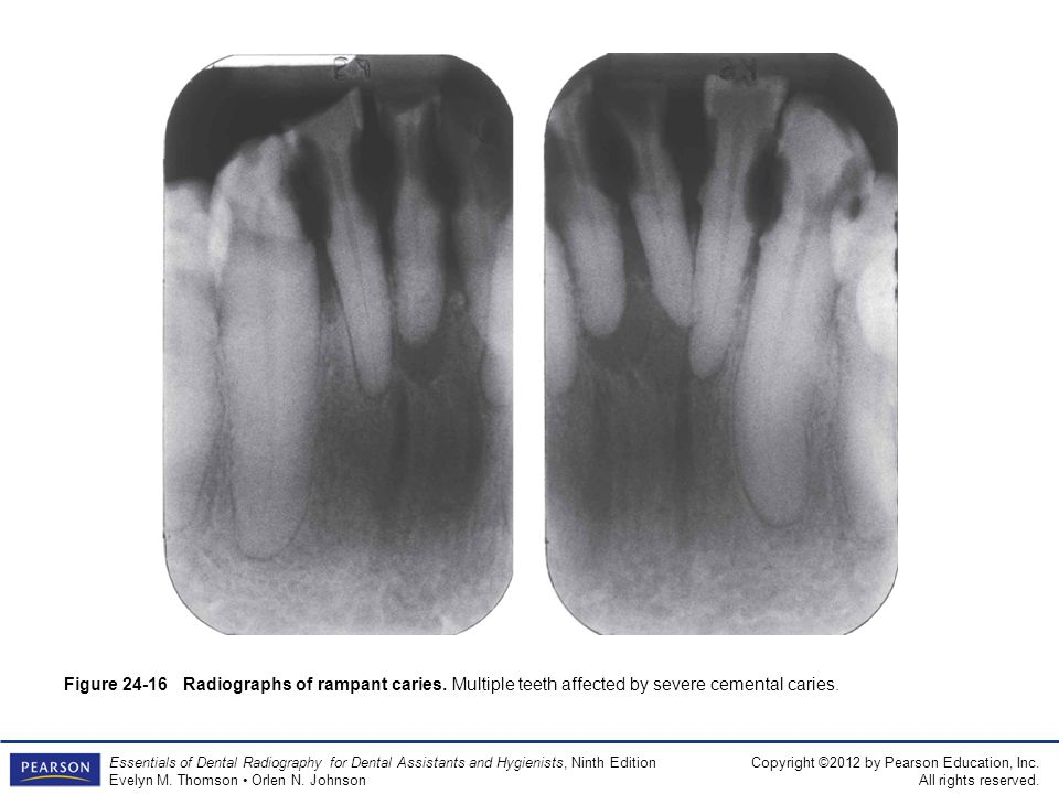 Figure 24-16 Radiographs of rampant caries