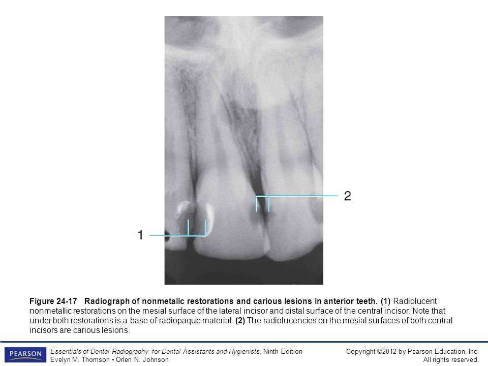Figure 24-17 Radiograph of nonmetalic restorations and carious lesions in anterior teeth.