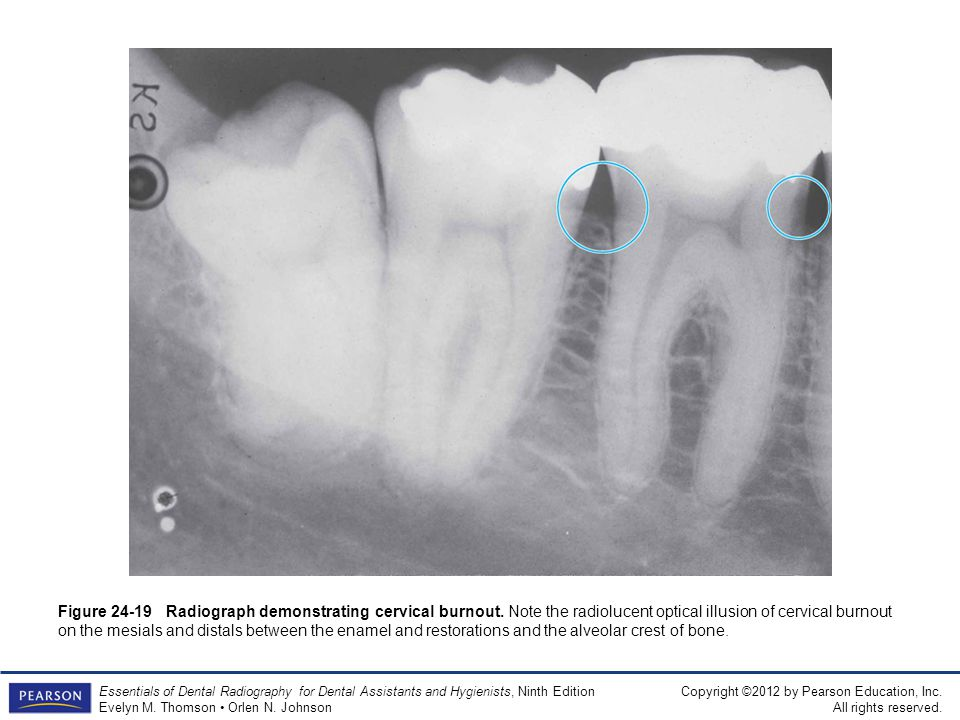 Figure 24-19 Radiograph demonstrating cervical burnout