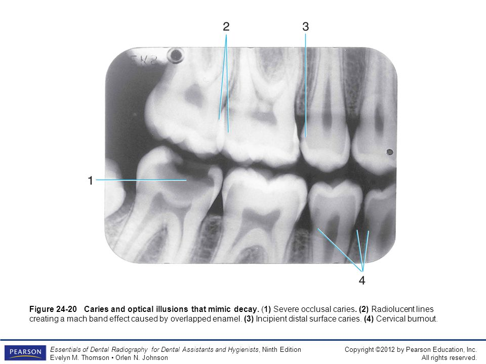 Figure 24-20 Caries and optical illusions that mimic decay
