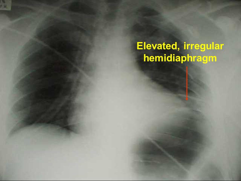 Elevated, irregular hemidiaphragm