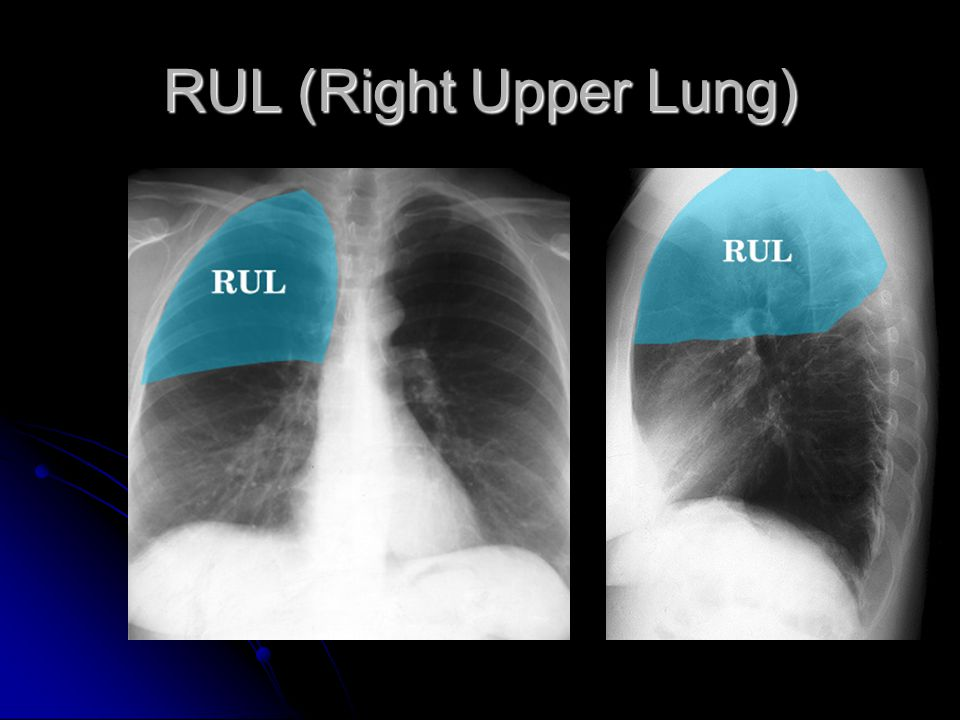 RUL (Right Upper Lung)