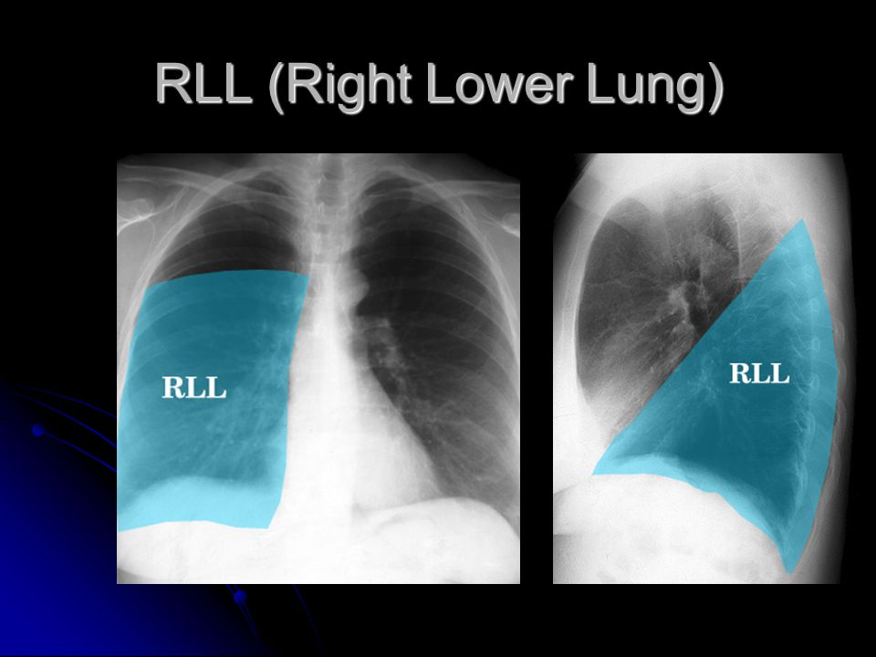 RLL (Right Lower Lung)