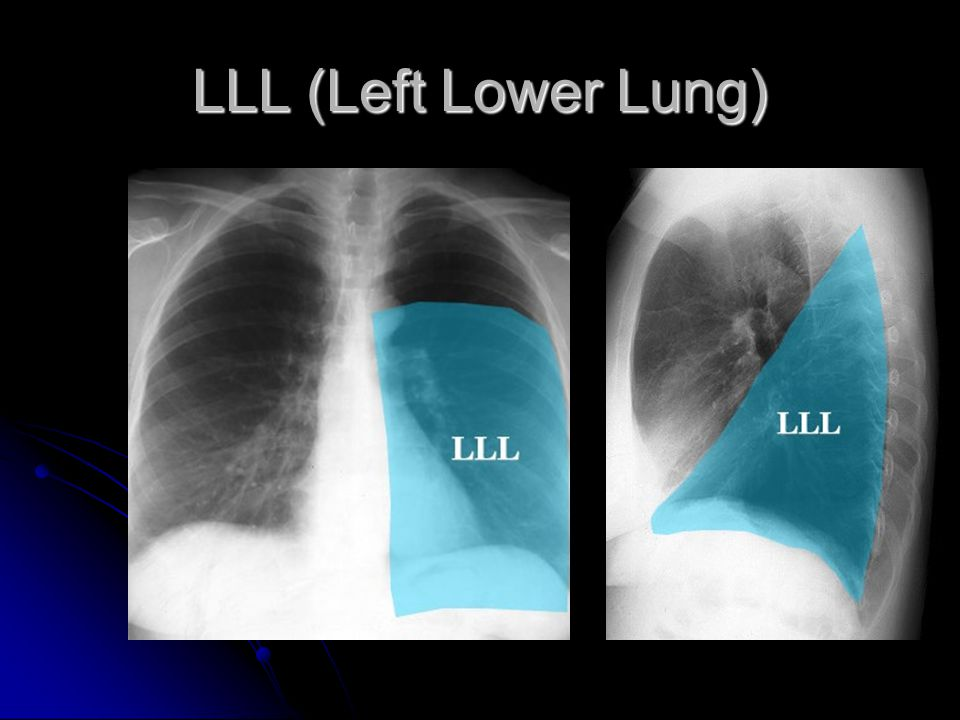 LLL (Left Lower Lung)