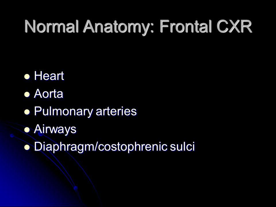 Normal Anatomy: Frontal CXR