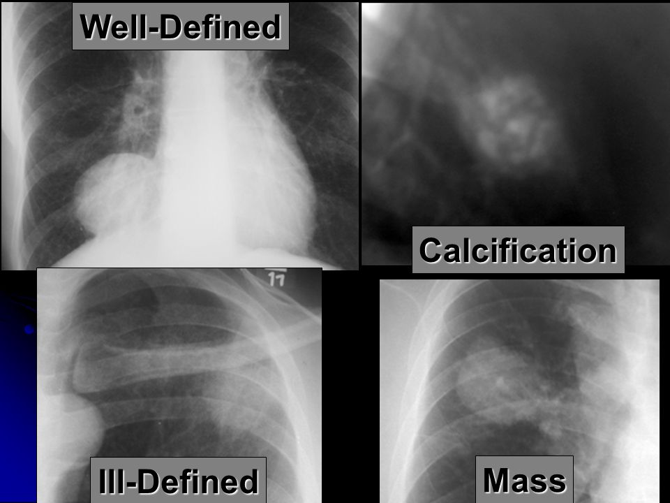 Well-Defined Calcification Ill-Defined Mass