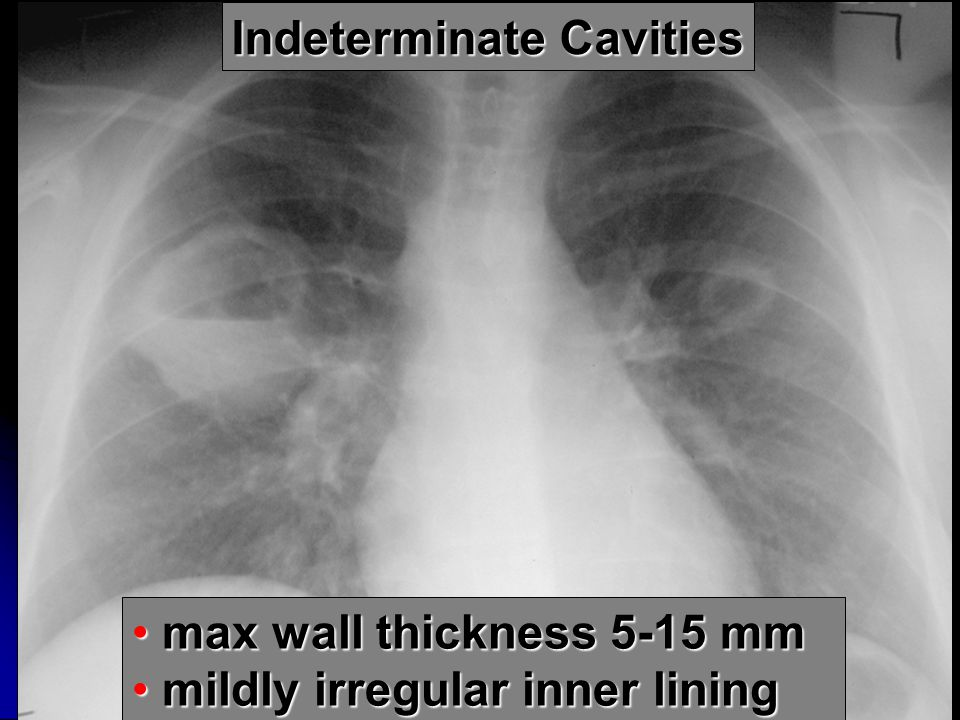 Indeterminate Cavities