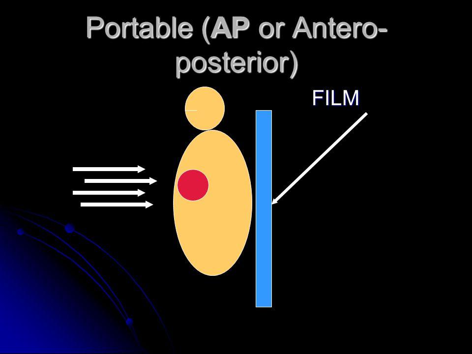 Portable (AP or Antero-posterior)