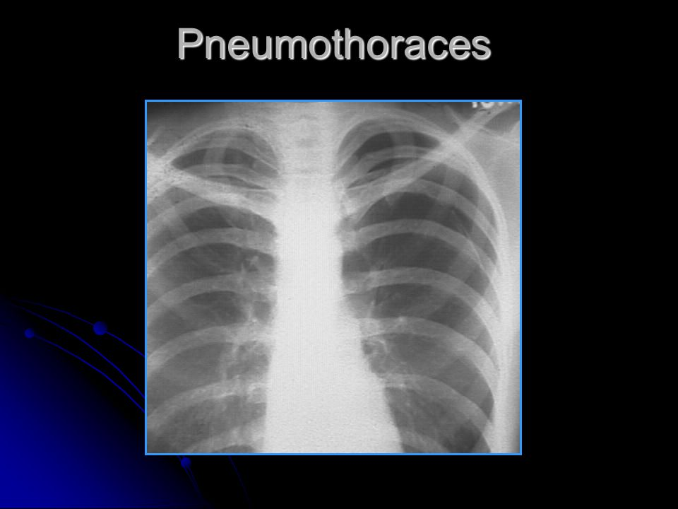 Pneumothoraces