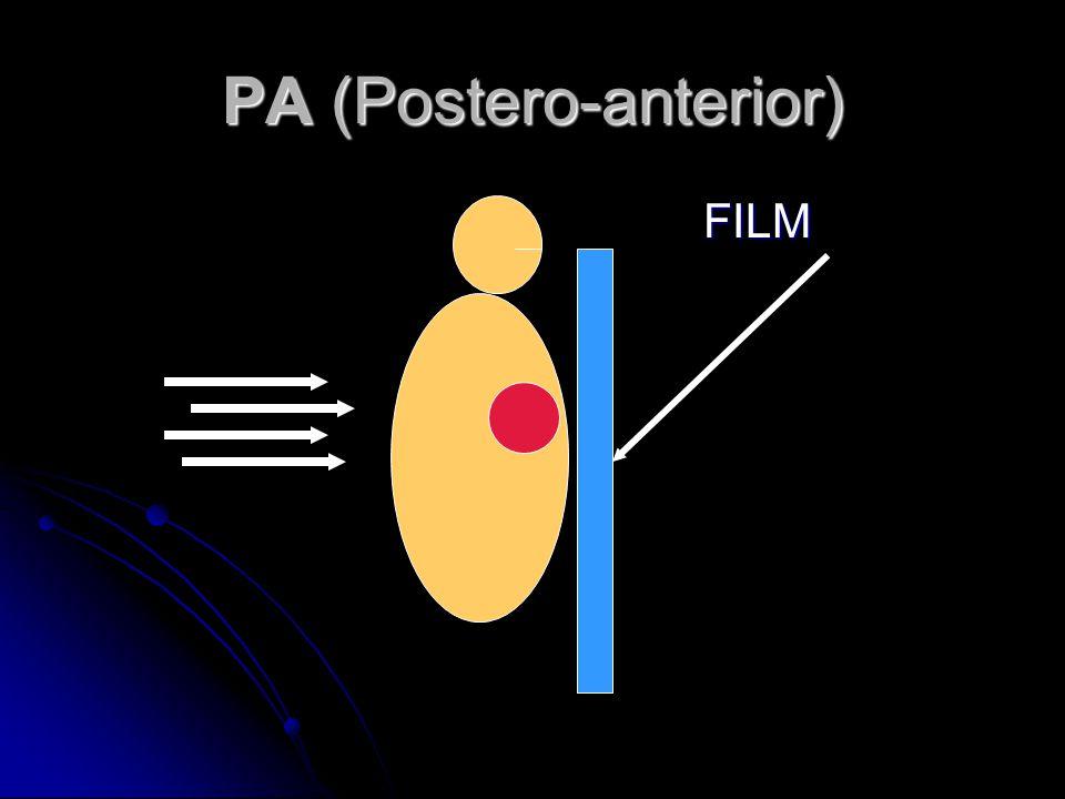 PA (Postero-anterior)
