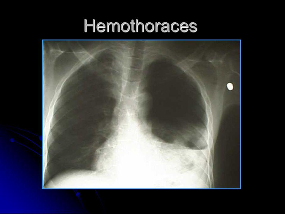 Hemothoraces
