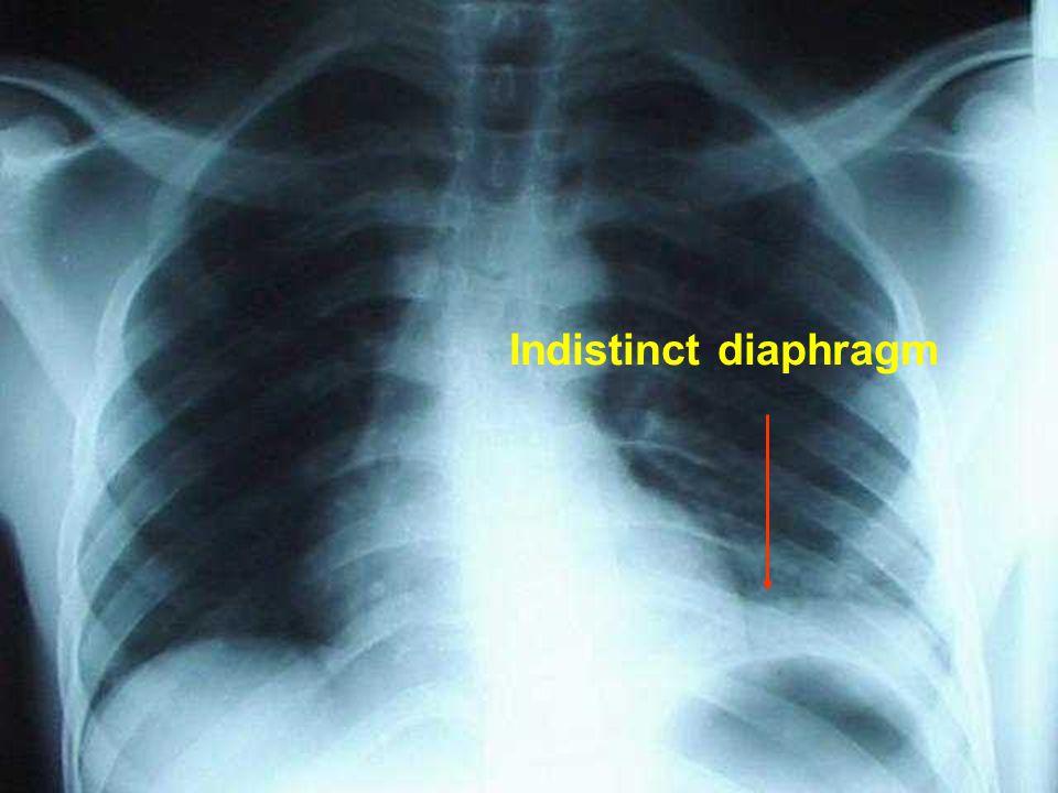 Indistinct diaphragm