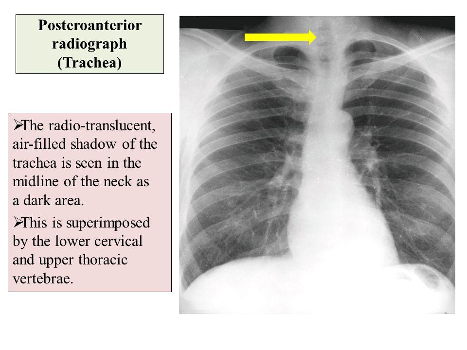 Posteroanterior radiograph (Trachea)