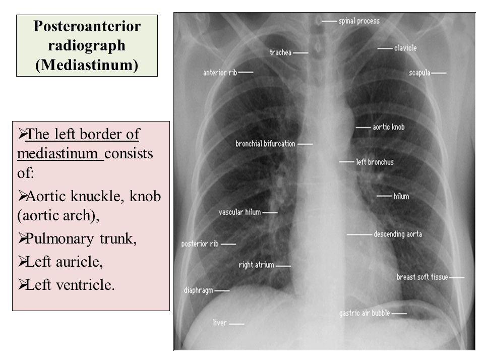 Posteroanterior radiograph (Mediastinum)