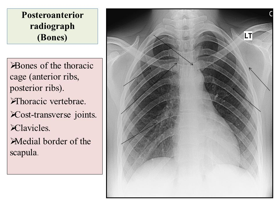 Posteroanterior radiograph (Bones)
