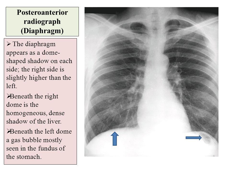 Posteroanterior radiograph (Diaphragm)