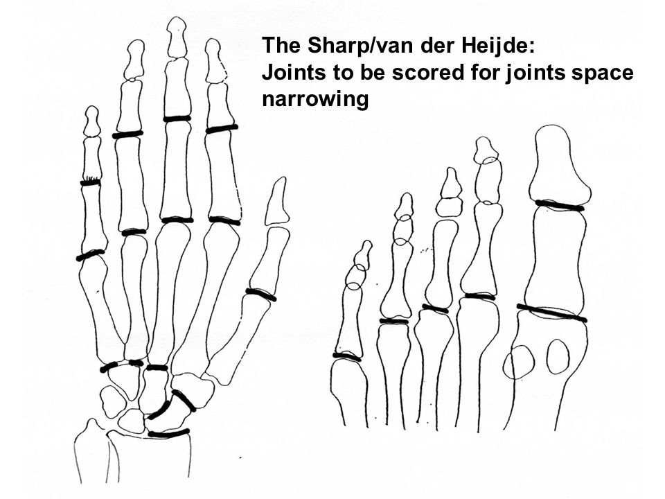 The Sharp/van der Heijde:
