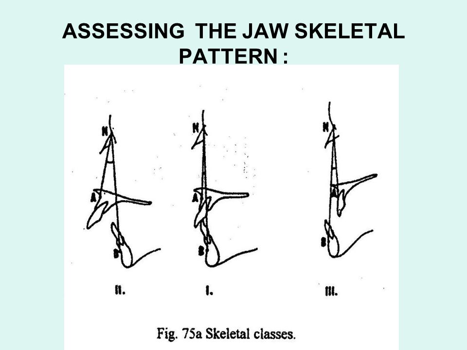 ASSESSING THE JAW SKELETAL PATTERN :