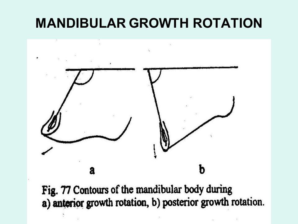 MANDIBULAR GROWTH ROTATION