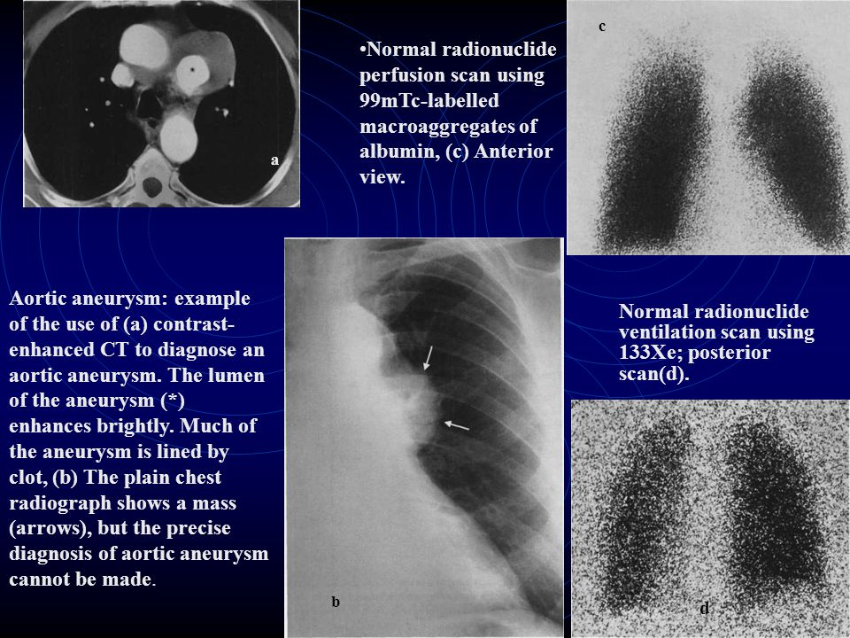 a c. Normal radionuclide perfusion scan using 99mTc-labelled macroaggregates of albumin, (c) Anterior view.