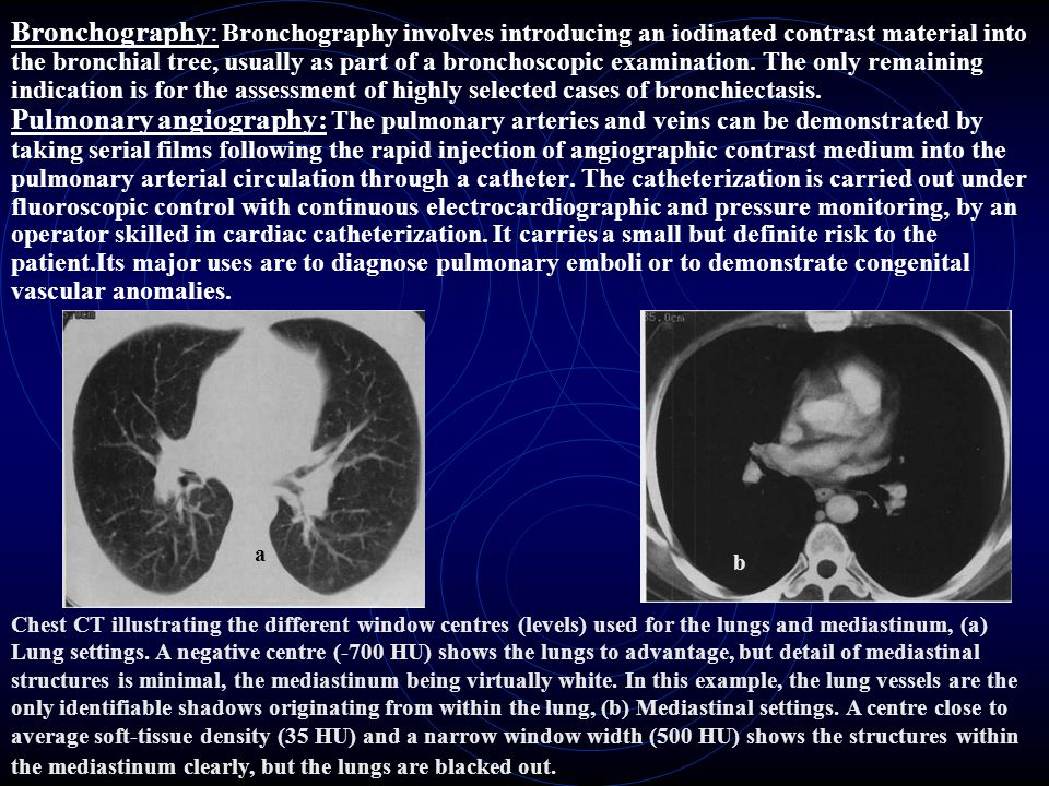 Bronchography: Bronchography involves introducing an iodinated con­trast material into the bronchial tree, usually as part of a bronchoscopic examination. The only remaining indication is for the assessment of highly selected cases of bronchiectasis. Pulmonary angiography: The pulmonary arteries and veins can be demonstrated by taking serial films following the rapid injection of angiographic contrast medium into the pulmonary arterial circulation through a catheter. The catheterization is carried out under fluoroscopic control with continuous electrocardiographic and pressure monitoring, by an operator skilled in cardiac catheterization. It carries a small but definite risk to the patient.Its major uses are to diagnose pulmonary emboli or to demonstrate congenital vascular anomalies.
