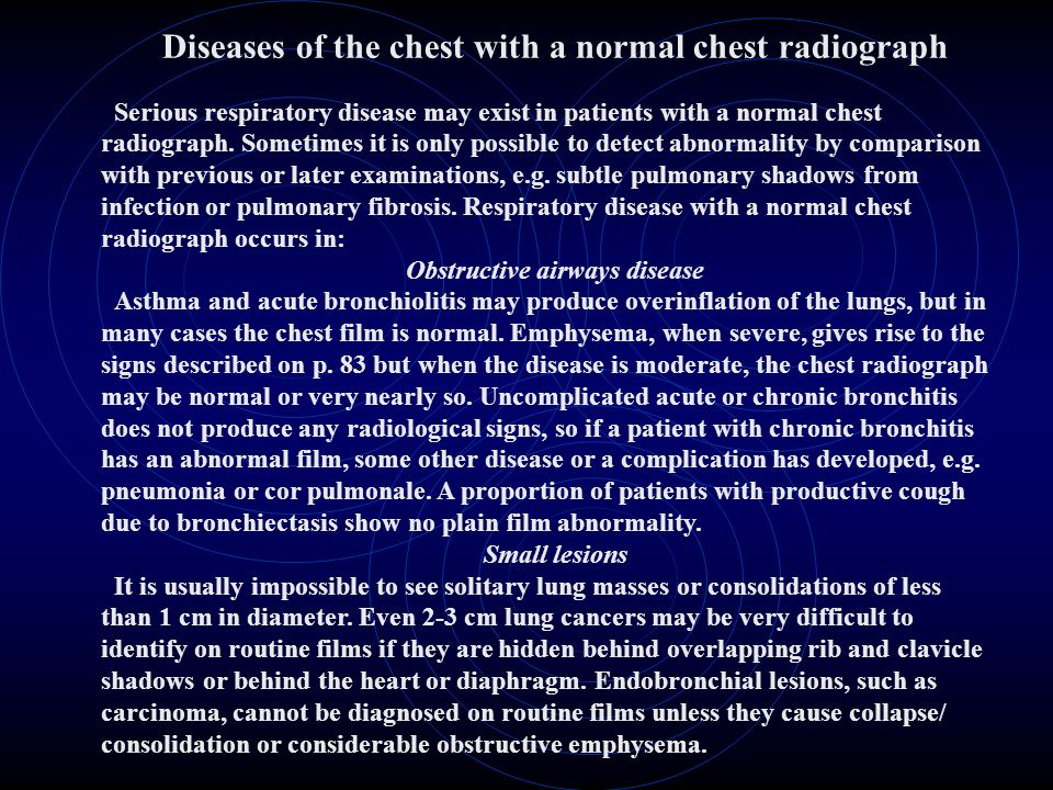 Diseases of the chest with a normal chest radiograph