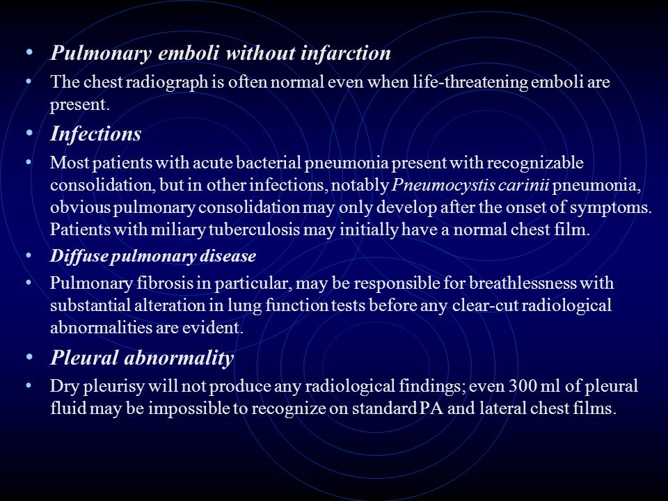 Pulmonary emboli without infarction