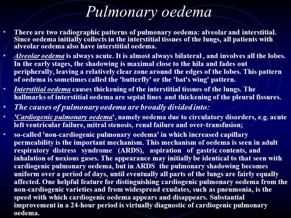 Pulmonary oedema