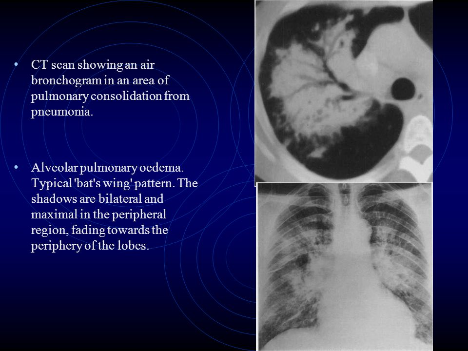 CT scan showing an air bronchogram in an area of pulmonary consolidation from pneumonia.
