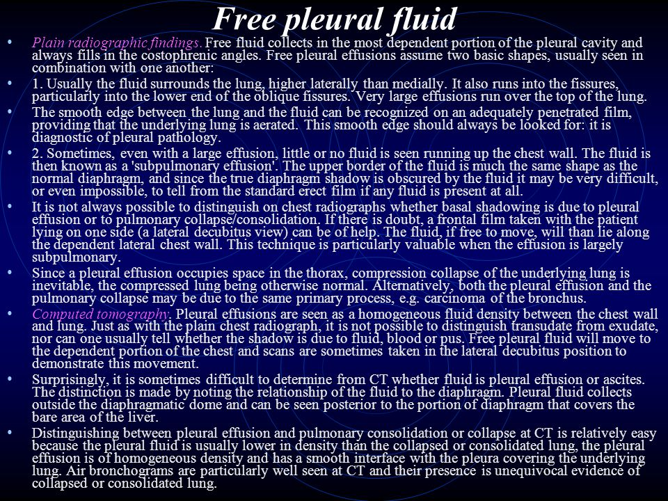 Free pleural fluid