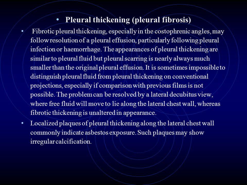 Pleural thickening (pleural fibrosis)