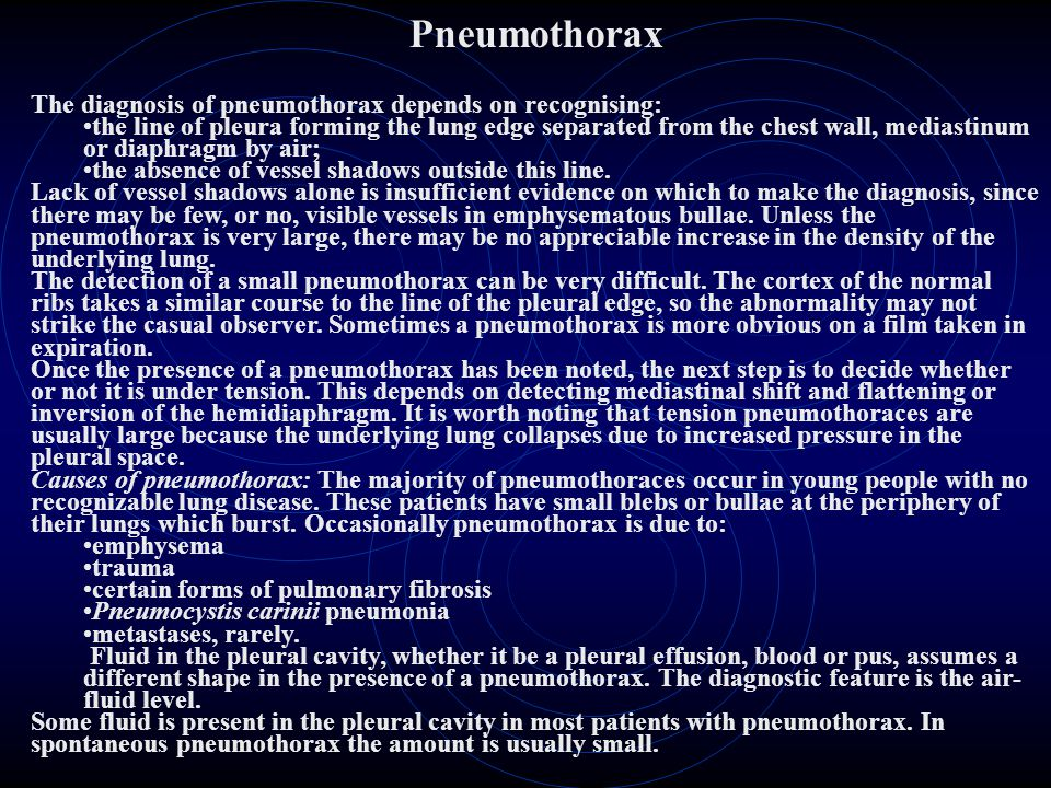 Pneumothorax The diagnosis of pneumothorax depends on recognising: