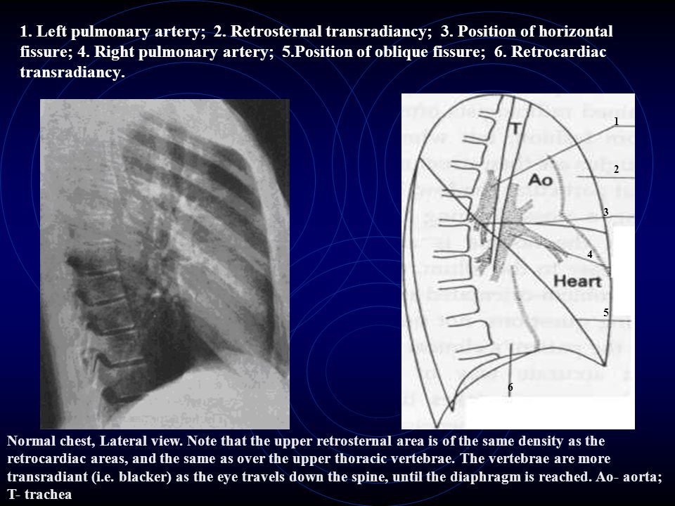 1. Left pulmonary artery; 2. Retrosternal transradiancy; 3
