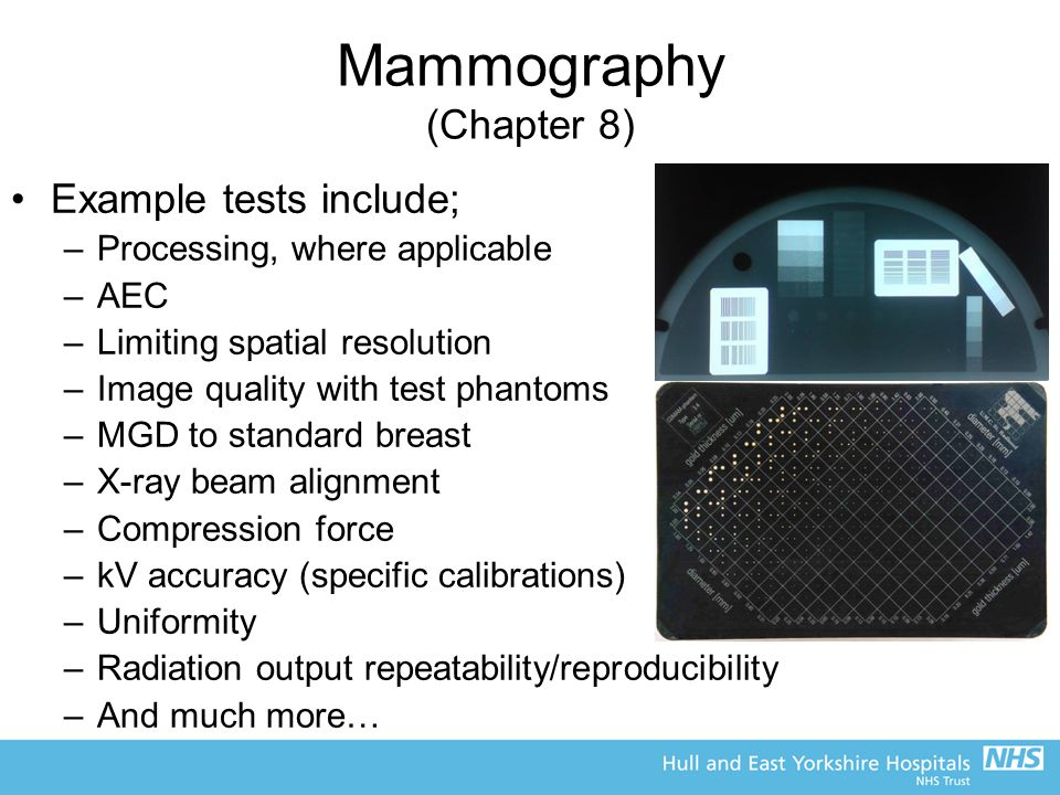 Mammography (Chapter 8)