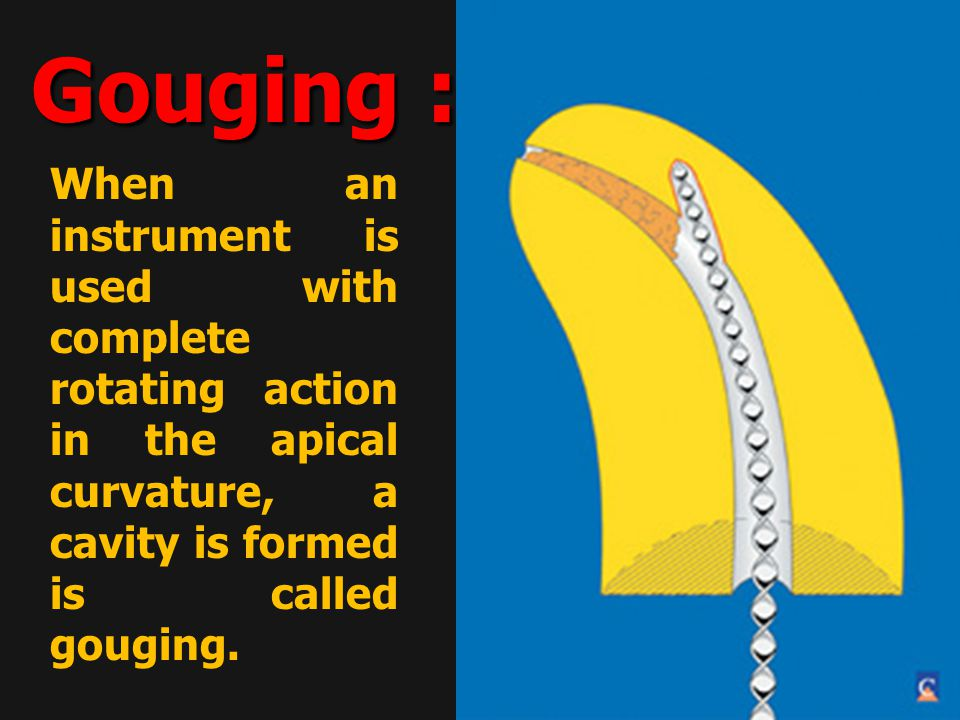 Gouging : When an instrument is used with complete rotating action in the apical curvature, a cavity is formed is called gouging.