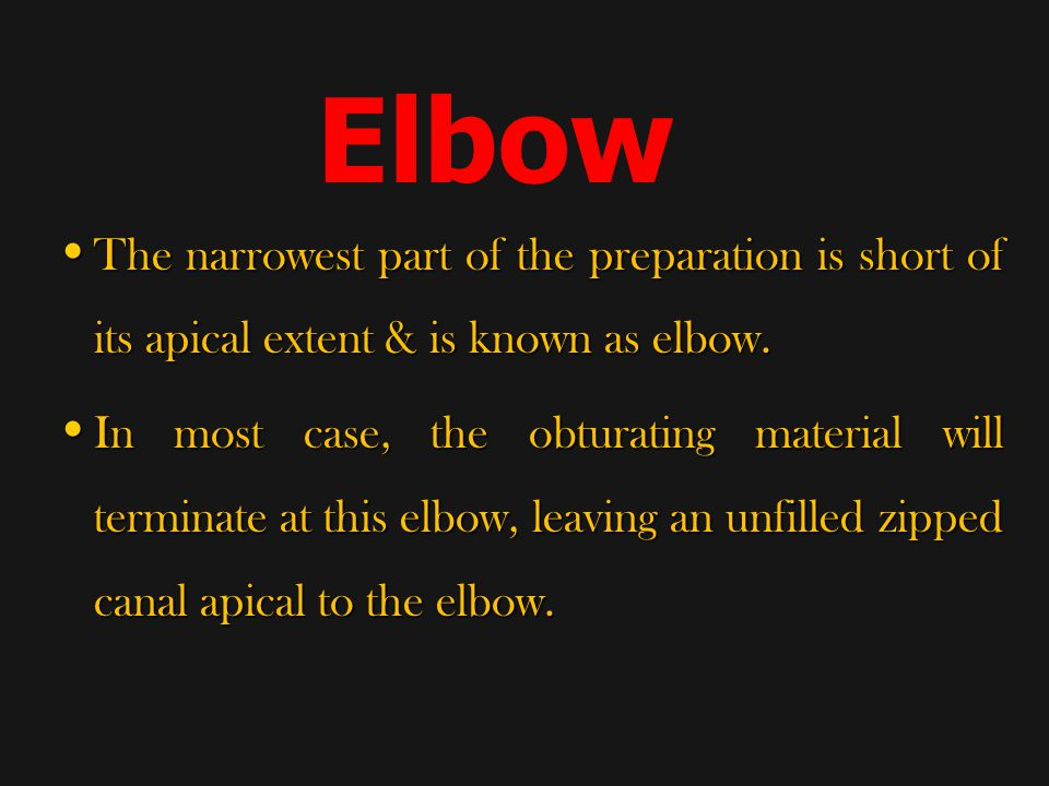 Elbow The narrowest part of the preparation is short of its apical extent & is known as elbow.