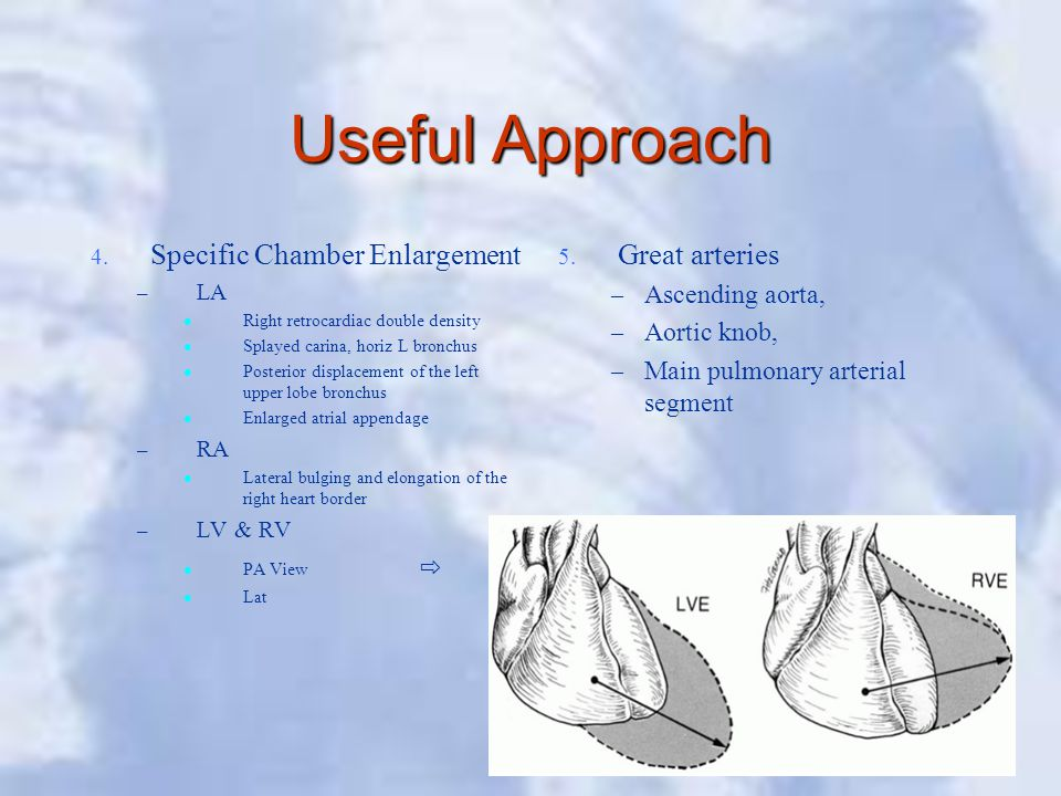 Useful Approach Specific Chamber Enlargement Great arteries